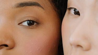 acne feiten fabels