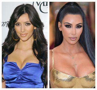 kim kardashian plastische chirurgie