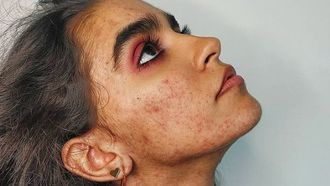 skin-positivity acne